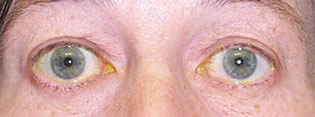 Pre-Operative Photograph showing upper eyelid retraction